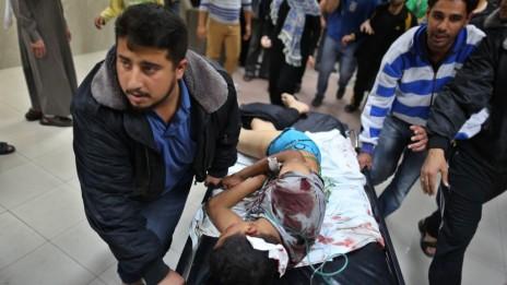 פלסטיני פצוע מובל לקבלת טיפול בבית-חולים בעזה, אתמול (צילום: ויסאם נאסר)