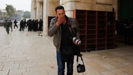 """צלם """"ידיעות אחרונות"""" עטא עוויסאת לאחר שנפצע בפניו מחוץ להר-הבית. 8.3.13 (צילום: סלימן חאדר)"""
