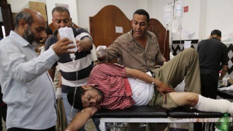 אחד התומכים בנשיא המודח מורסי מקבל טיפול בבית-חולים מאולתר בקהיר, שלשום (צילום: ויסאם נאסר)